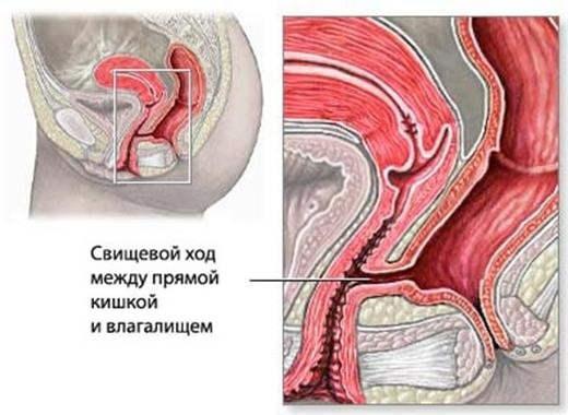 Фибрин во влагалище